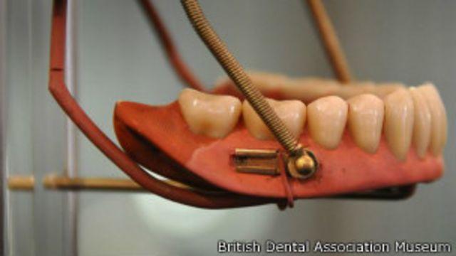 Incluso los joyeros ajustaban dentaduras.