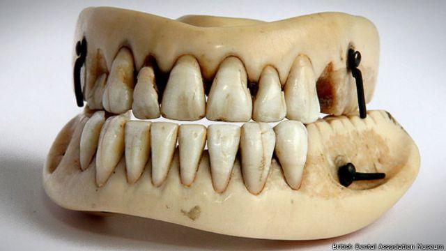 Y los dientes terminaron en dentaduras postizas como ésta.