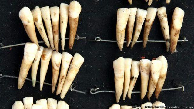 Estos dientes estuvieron una vez en la boca de varios soldados.