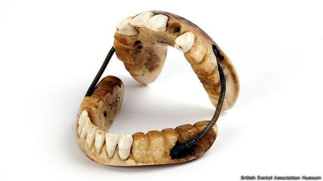 Las piezas con dientes humanos eran las más cotizadas.