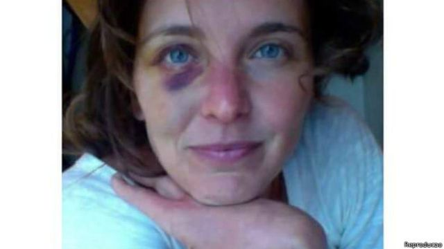 Manuela ficou com hematomas no rosto e na cabeça após ter sido presa
