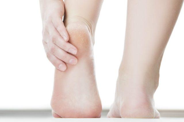 Los callos se producen cuando se somete al pie a una presión constante o sobrecarga.