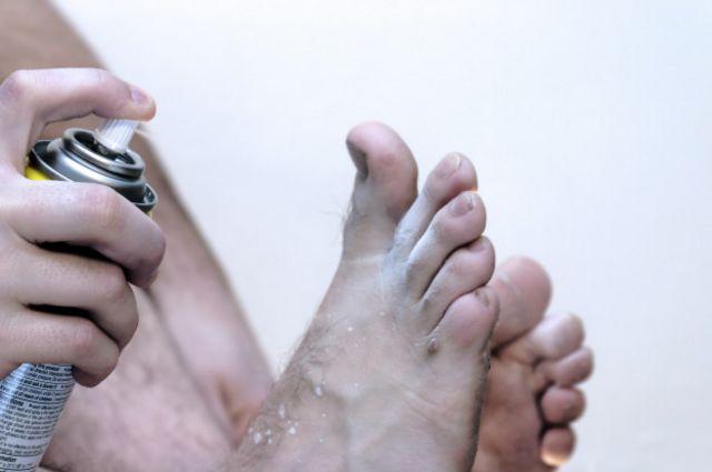 El llamado pie de atleta es muy contagioso.