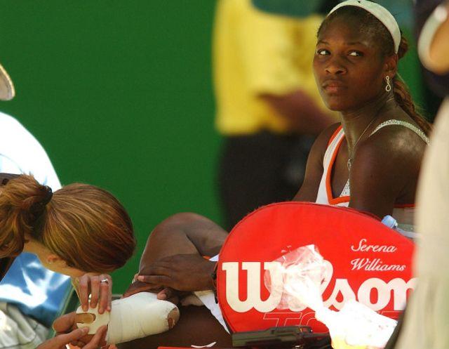 Los tenistas, como ocurrió con una joven Serena Williams, suelen ser propensos a la aparición de ampollas.