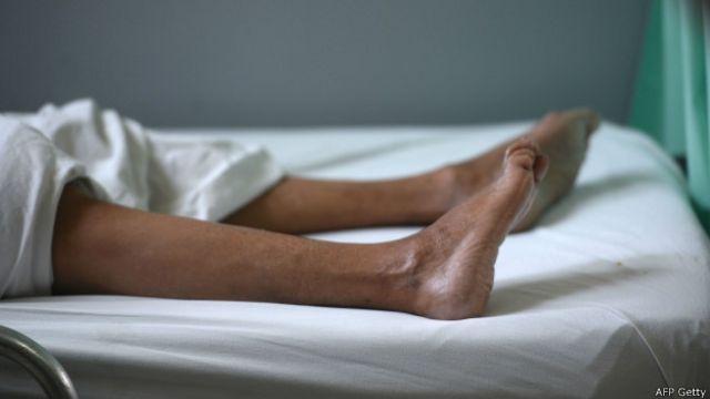 El síndrome Guillain-Barre suele provocar una parálisis progresiva.