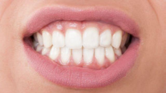 Quienes sufren dismorfia dental tienen una obsesión con la apariencia de sus dientes.
