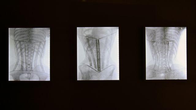 Korsetlərin rentgen fotoları.