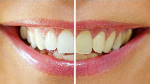 La edad tmabién tiñe los dientes de amarillo.