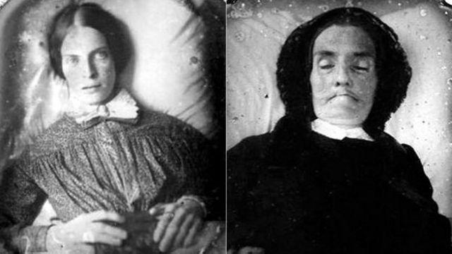 En ocasiones, los ojos eran retocados en la fotografía luego de tomada para dar la impresión de vida en el muerto. Otra veces, su estado era más evidente.