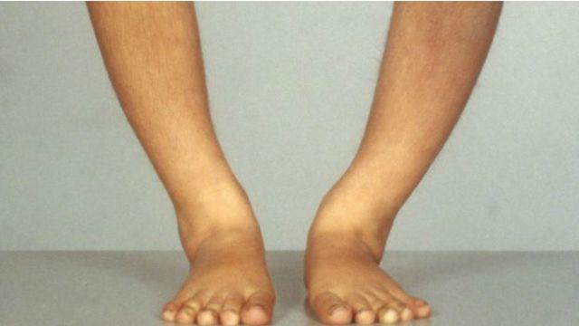 缺乏维生素D ,会导致骨质变薄、变软、变稀疏。骨头会变得脆弱甚至变形。人体内长期缺乏维生素D,可导致儿童患佝偻病。
