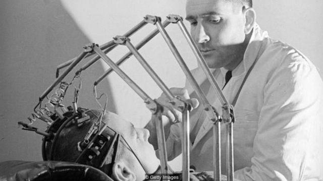 早期試圖尋找生命跡象的辦法包括用鉗子夾乳頭。(圖片來源: Getty Images)