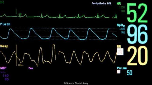 有心律的屍體不應與處於昏迷或植物人狀態的病患混淆。 (圖片來源: Science Photo Library)
