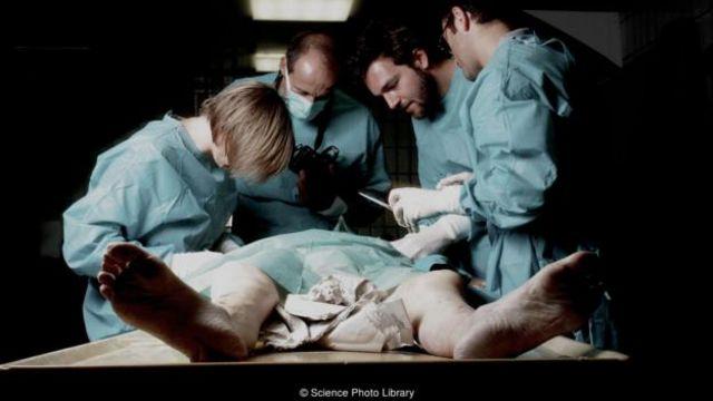 有心跳的屍體將通過複雜的治療方法得以保存,為器官移植做凖備。(圖片來源 Science Photo Library)