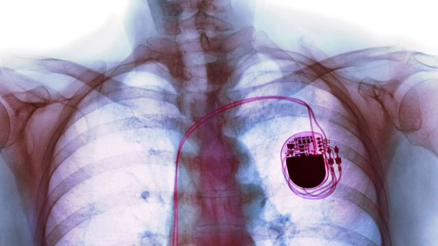 Una radiografía de un paciente con marcapasos.
