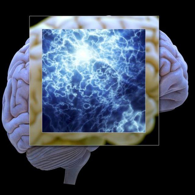 人脑和神经元图片