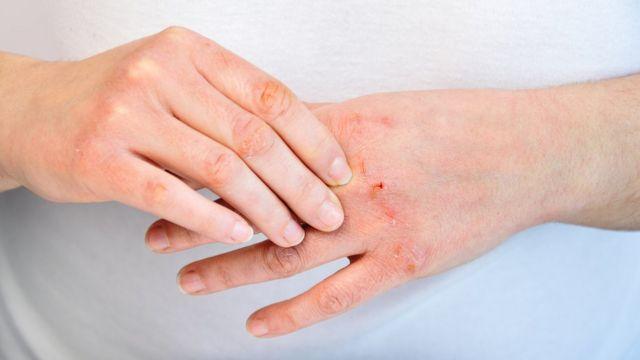 Close em par de mãos com machucados provenientes de alergia