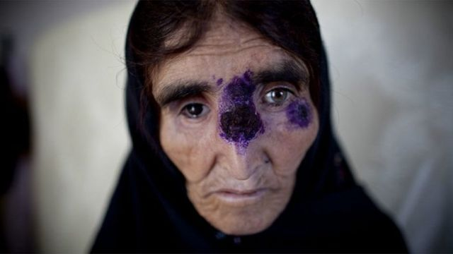 Mulher com leishmaniose recebe tratamento em Cabul, no Afeganistão, em 2010