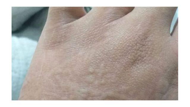 Imagen de Taina Fernandes que muestra manifestaciones dermatológicas diagnosticadas como urticaria.