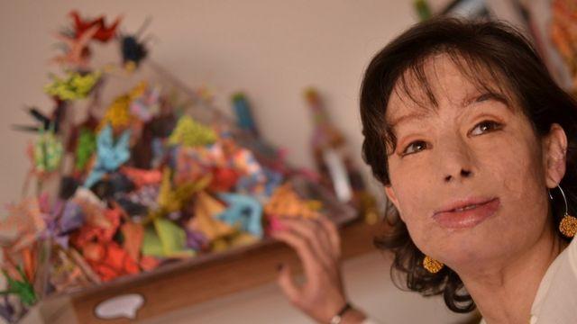 Natalia Ponce de León fue víctima de un ataque con ácido en 2014, en Colombia.