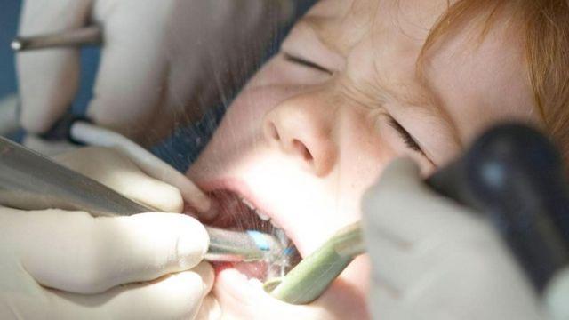 दांतों का इलाज