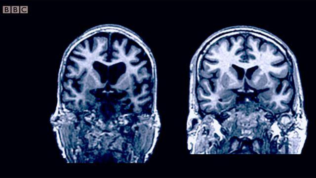 Imagens de cérebros