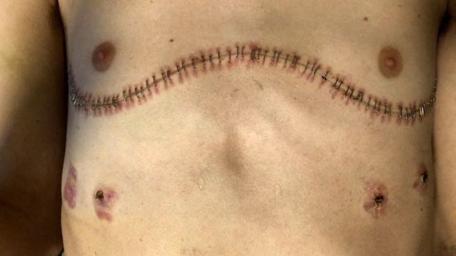 Imagem das cicatrizes de Ament após a cirurgia