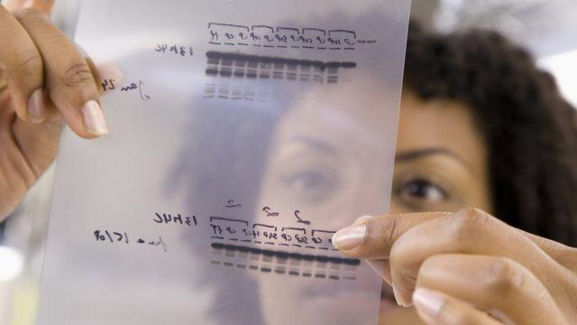 डीएनए सैम्पल जांच