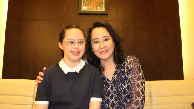hari down syndrome internasional, down syndrome, stephanie handojo