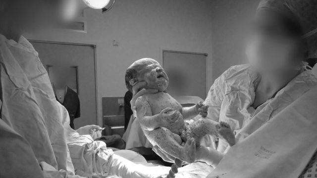 Девочка, родившаяся посредством кесарева сечения