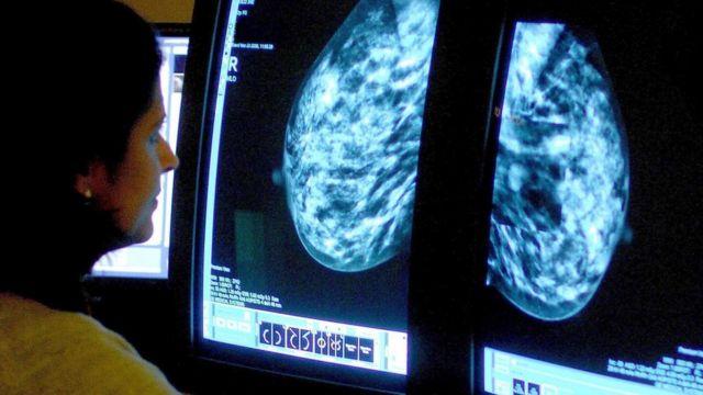 Una mujer mira un análisis de una mama