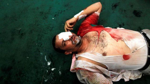 Ramses Meydanı'ndaki gösteride yaralanan bir Mursi destekçisi