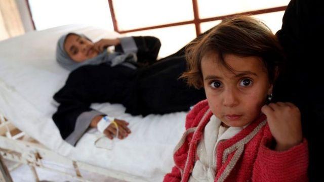 Yemen'de iki milyon kadar çocuk akut yetersiz beslenmeyle karşı karşıya.