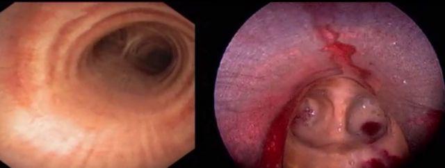 Bronchoscopy footage
