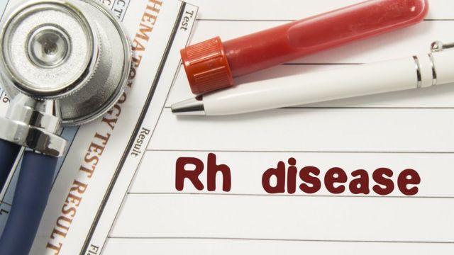 Hemolitička bolest
