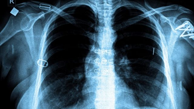 TB 'joins HIV as most deadly infection'
