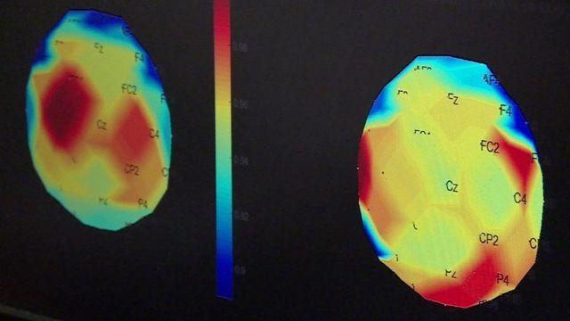 radiografias do cérebro