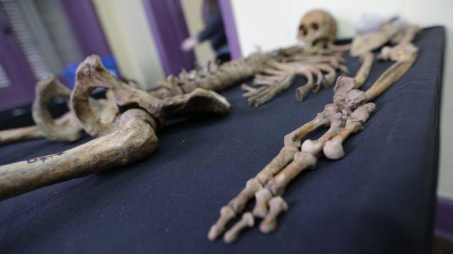 un esqueleto reposa sobre un planchón cubierto por una manta azul.