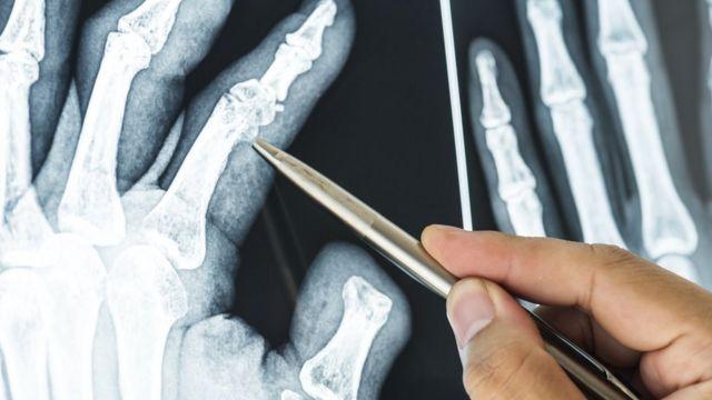 Caneta aponta para dedo fraturado em imagem de raio X