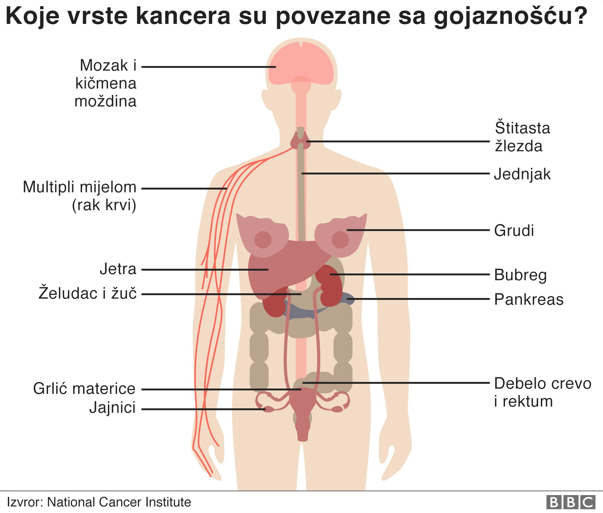 gojaznost i rak