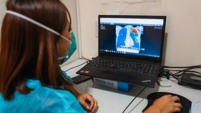 Una trabajadora de la salud examina en la computadora una radiografía en la clínica TB Móvil de Socios en Salud