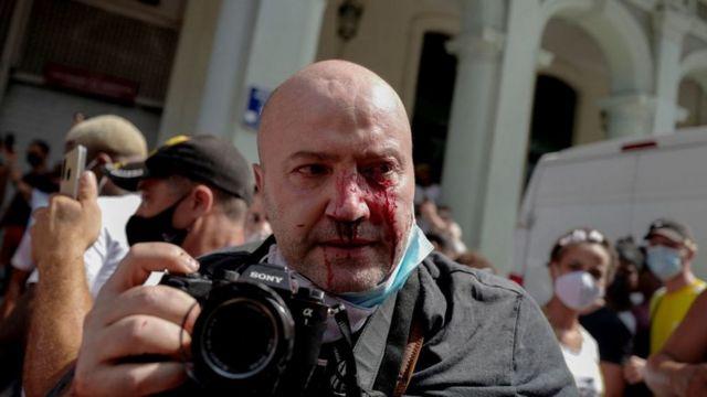 Ramón Espinosa con la cara ensangrentada