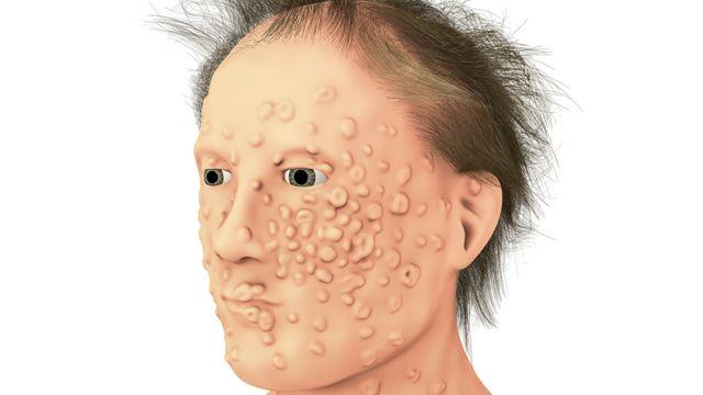 Ilustración efectos de la viruela.
