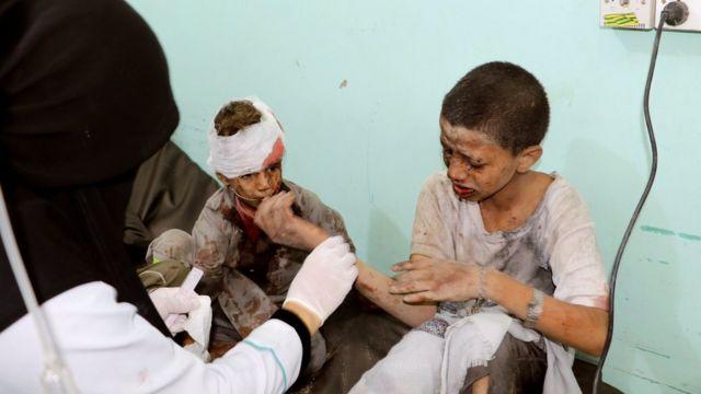 A doctor treats children injured by an air strike in Saada, Yemen (9 August 2018)