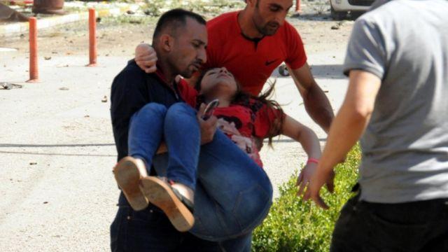 तुर्की में हुए कार बम विस्फोट में कई लोग हुए घायल