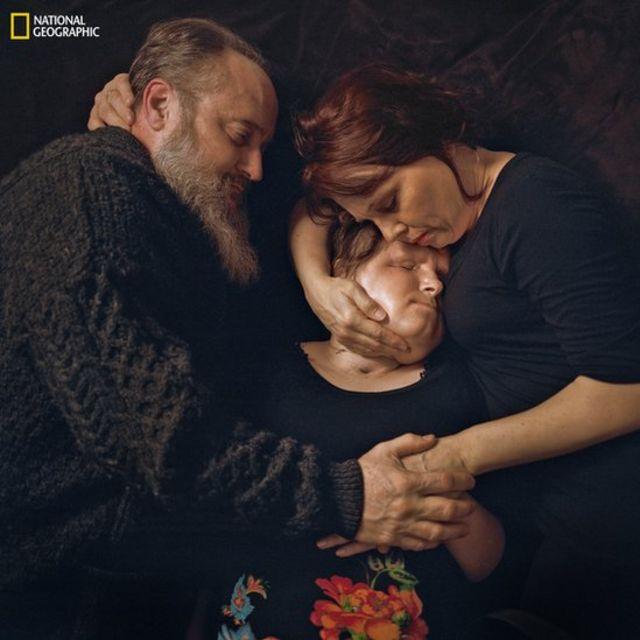 Imagem mostra Katie Stubblefield, já com o novo rosto, sendo abraçada pelos pais. Ela é a mais jovem americana a passar por um transplante facial. Foi submetida à cirurgia após uma tentativa de suicídio que a fez perder grande parte do rosto.