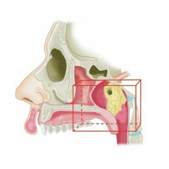 Ilustração mostra localização das glândulas