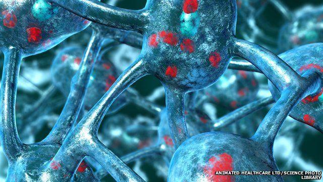 Parkinson's disease: computer artwork of neurones