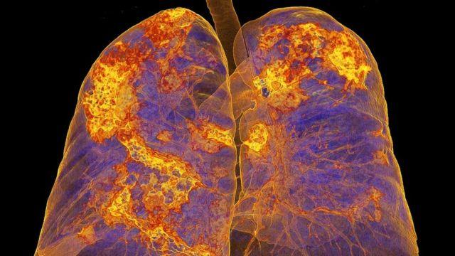 Koronavirüs kapmış bir hastanın akciğer filmi.