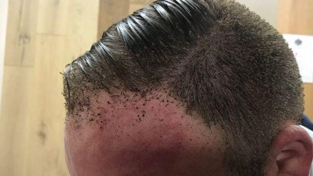 پیتر یکی از مسافرانی است که بخشی از پیشانی و موهایش سوخته است