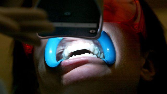 Perawatan pemutihan gigi secara profesional